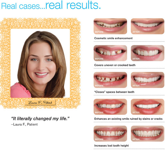 Clip On Veneers http://www.coronavillagedental.com/cliponteeth.html